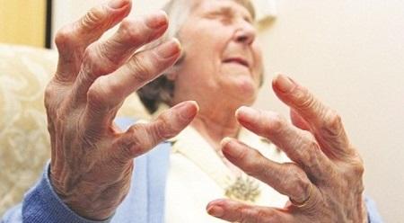Sưng đau cứng khớp trong Bệnh Viêm khớp dạng thấp
