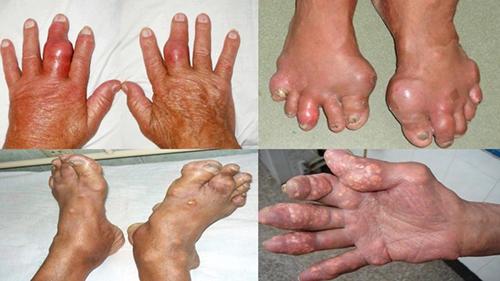 Sưng đau nóng đỏ các khớp trong Bệnh Gout