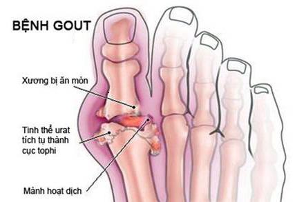 Lắng đọng tinh thể urat hình thành hạt Tophi trong bệnh Gout